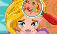 لعبة علاج شعر روبينزل