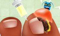 لعبة طبيب الاظافر